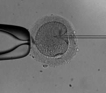Intracitoplazmatikus spermium injekció (ICSI)